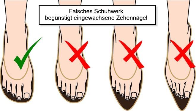Eingewachsene Zehennägel durch falsche Schuhe