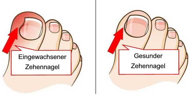 Gesunder und eingewachsener Fußnagel im Vergleich